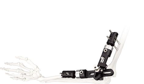 肘膝关节单臂式支架(肘)